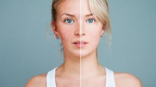 Chronique beauté : Couperose ou rosacée?